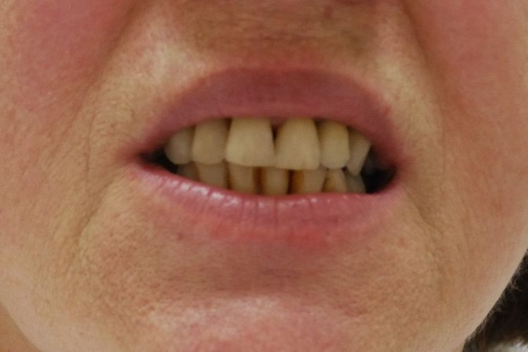 Konzervativa stomatologija